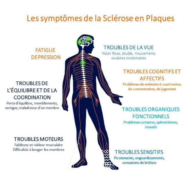 symptomes-sclrose-en-plaques
